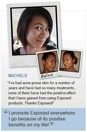 does exposed skin care work - Michele