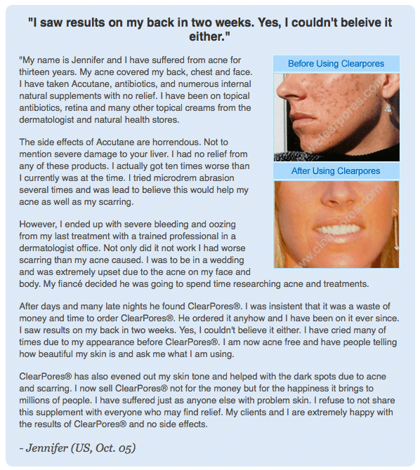 Clearpores Testimonial by Jennifer
